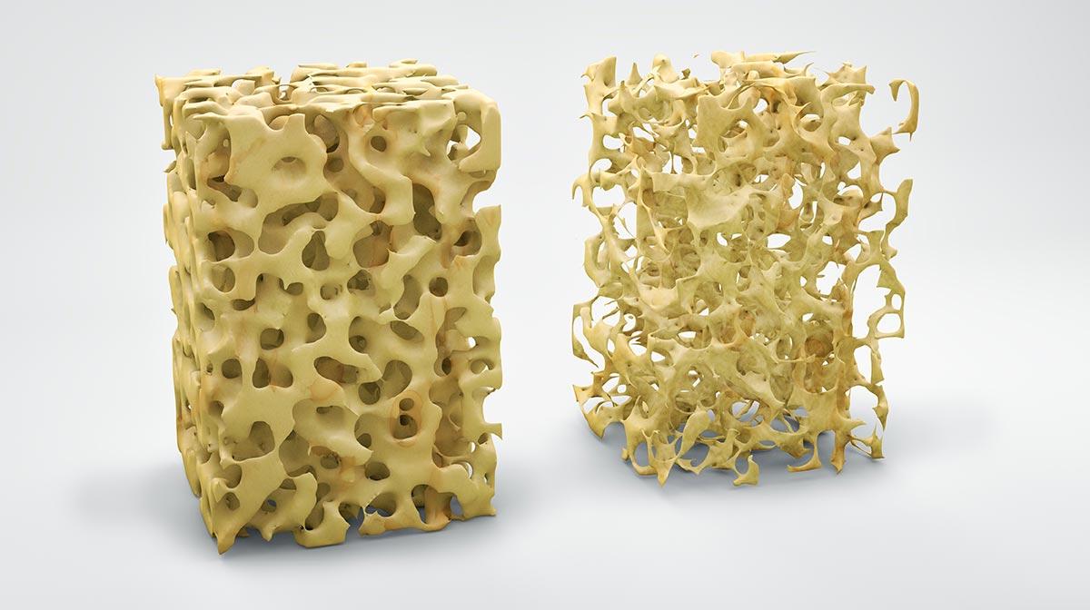Osteoporose Bad Nenndorf